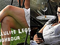001 - Cellulite Legs Neighbour (NW Series)